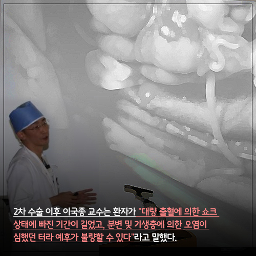 [카드뉴스] 북한 병사 살린 이국종 교수에 '인격테러범?'