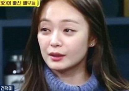 전소민, 성형외과 견적 '2300만원' 고백...